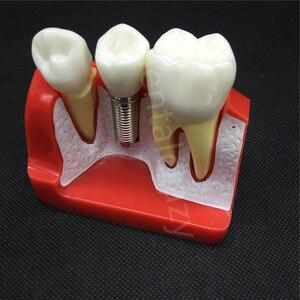 Image 5 - Diş öğretme İmplant analizi taç köprü çıkarılabilir modeli diş gösteri diş modeli