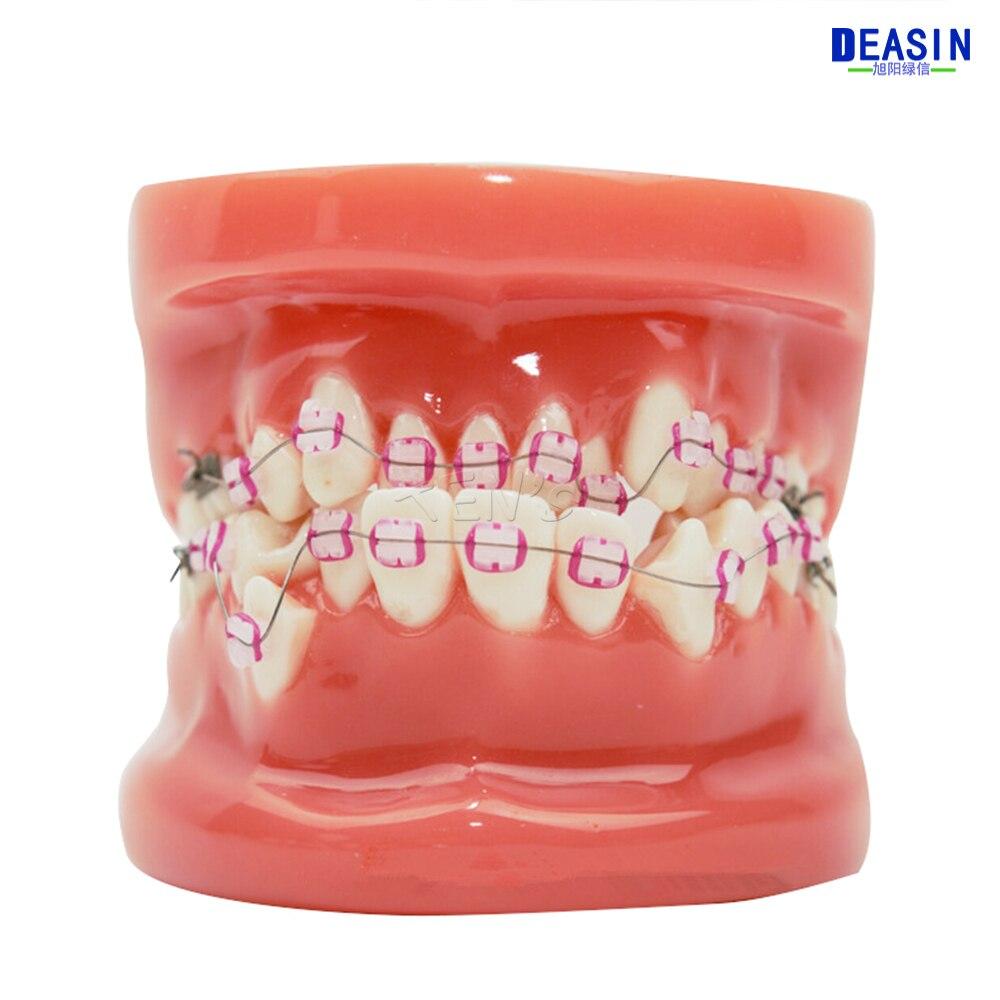 龅牙 (14)