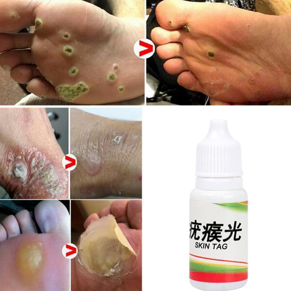 10ml Skin Tag Remover 12 Hours Tu Kill Medical Tu Kill Remover Skin Tag Mole Genital Wart Remover Foot Corn Blackhead Remover