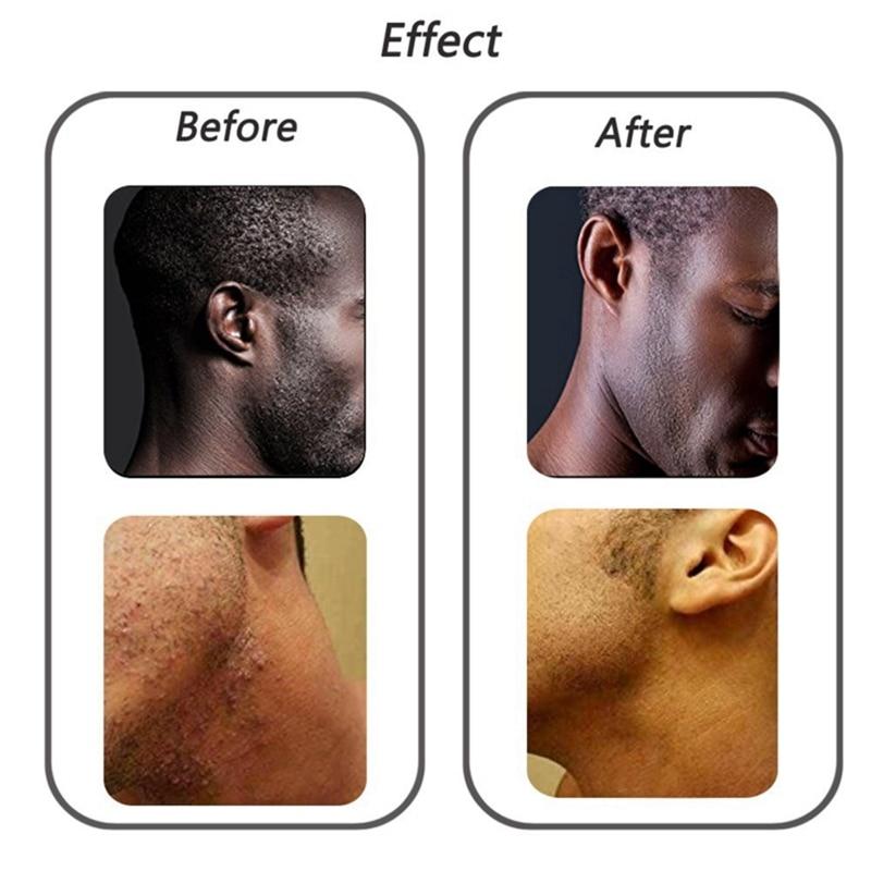 massagem de cabelo pente & 1 pces