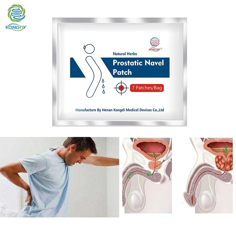 KONGDY Prostatic Navel Patch Natural Relieve Urinary Urgency Plaster 14 Pcs Prostatitis Urology Patch Male Prostatic Treatment
