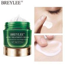 Cream-Pimple-Removal Skin-Care-Cream Tea-Tree Shrink-Pores Smoothing BREYLEE Spots Moisturizing