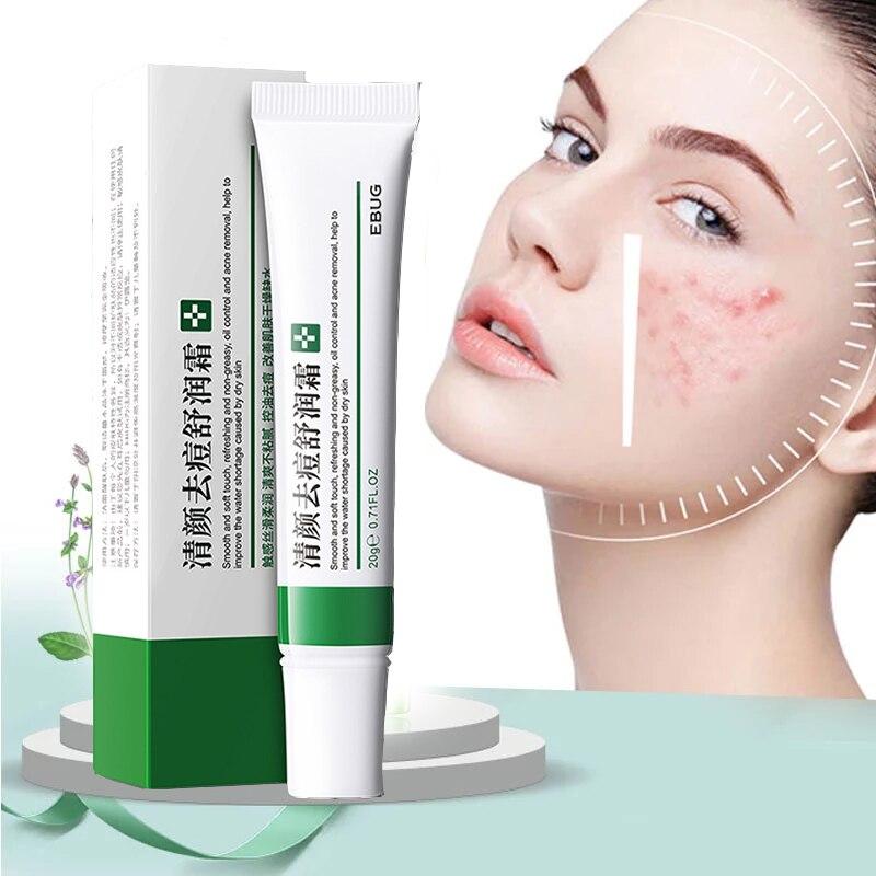 Crème efficace contre lacné, traitement de lacné, estompe les taches dacné, contrôle du sébum, rétrécit les Pores, blanchit, hydrate, crème contre lacné, soins de la peau