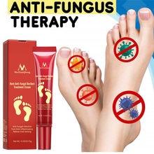 Crema Herbal para los pies, Gel de crema para el cuidado de los pies, antiinfección por hongos, antiinflamatorios, alivia la picazón, reparación de grietas secas
