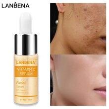 LANBENA C vitamini beyazlatma yüz Serum hafifletmek noktalar parlatıcı yüz cilt özü solmaya karanlık noktalar kaldırmak çil benek bakımı
