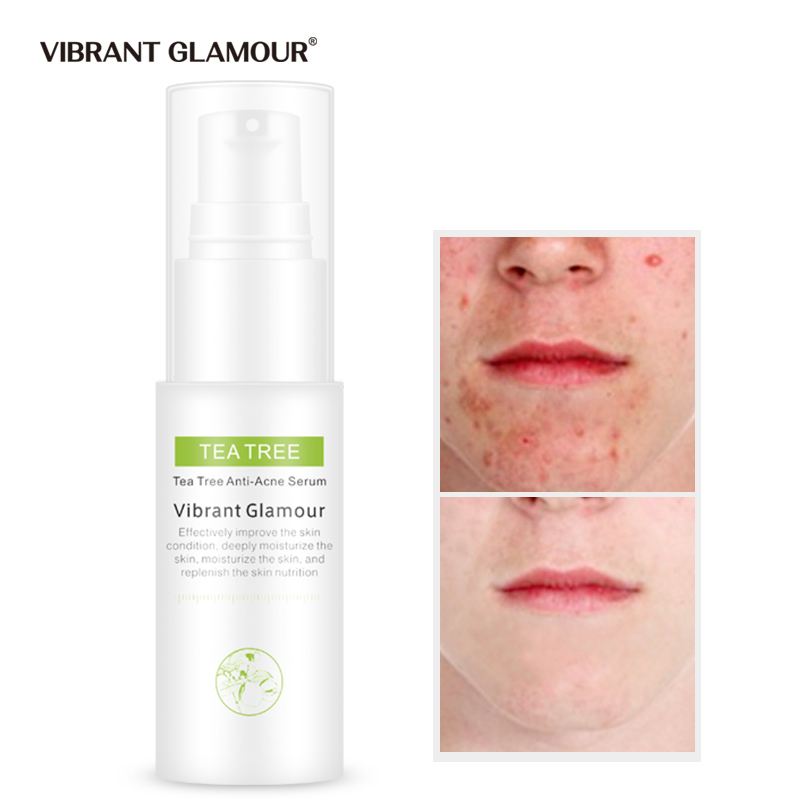 VIBRANT GLAMOUR Tea Tree Removing Acne Face Serum Shrink Pores Anti Acne Scar Pimples Spray Essence Whitening Nourish Skin Care