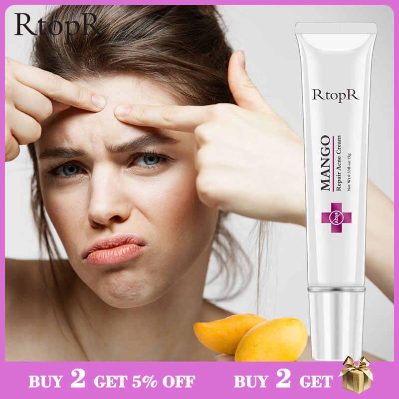 tratamiento para espinillas en la cara