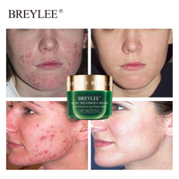 BREYLEE Acne Treatment Face Cream Anti Acne Pimple Removal Spots Oil Control Shrink Pores Moisturizing Whitening Skin Care 20G 2