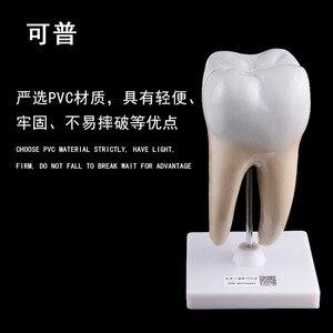 Image 2 - Giải Phẫu Người Răng Hàm Mở Rộng Mô Hình Khỏe Mạnh Lớn Cấu Trúc Răng Nha Khoa Oral Giảng Dạy Khuôn Trang Trí