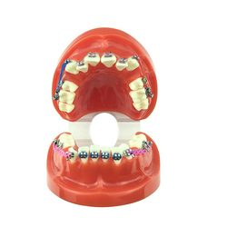 Dental Orthodontic teeth model with brackets and ligature wire affixed Dental Supplies