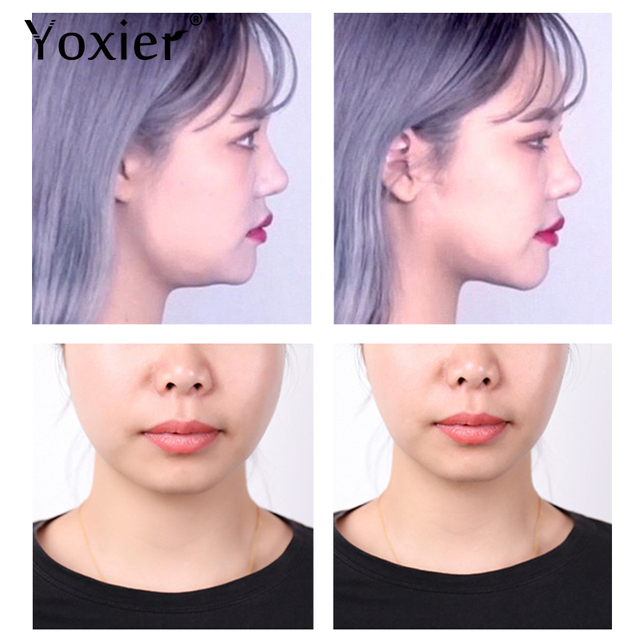 Yoxier Waterproof V Face Makeup Adhesive Tape Invisible Breathable Lift Face Sticker Lifting Tighten Chin 40pcs 2