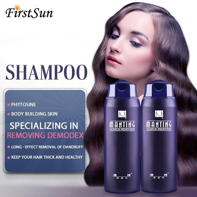 Manting Chinese Herbal Medicine Anti Dandruff Itching Shampoo Balancing Oil Control Nourishing Shampoo Professional Hair Care 1
