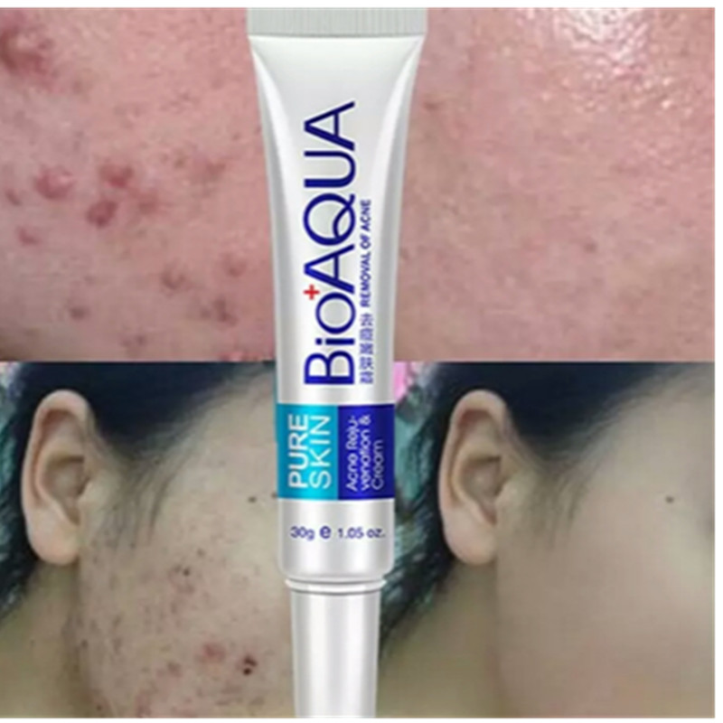 1PC Skin Care 30g Acne Treatment Blackhead Remova Anti Acne Cream Oil Control Shrink Pores Acne Scar Remove Face Care Whitening
