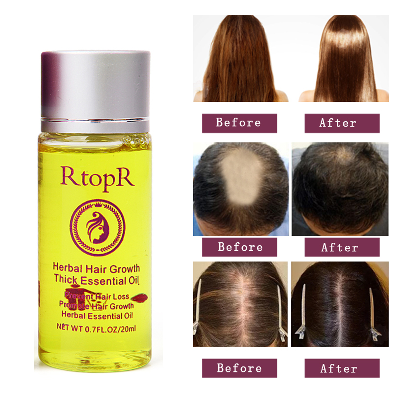 Unisex Women Men Herbal Hair Growth Products Ginger Oil Hair Growth Faster Grow Hair Ginger Shampoo Stop Hair Loss Treatment