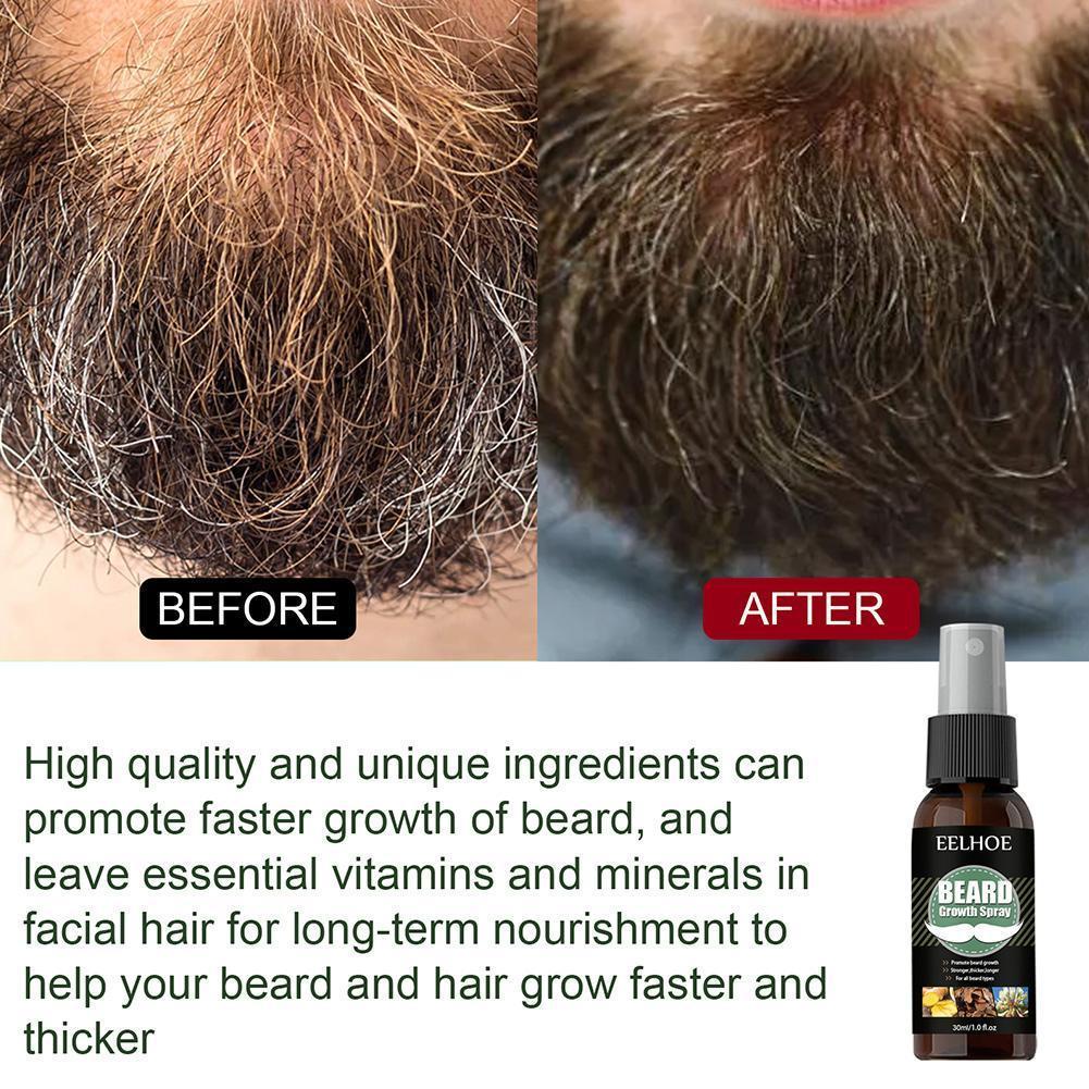 100% Natural Accelerate Hair Grow Beard Essential Beard Beard Men Care And Enhancer Oil Hair Growth Nourishing Oil 4 D1P5