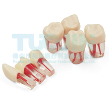Tooth-Model Dental Resin Equipmenent Practice Canal Root for Study-Lab Pulp-Cavity Teaching