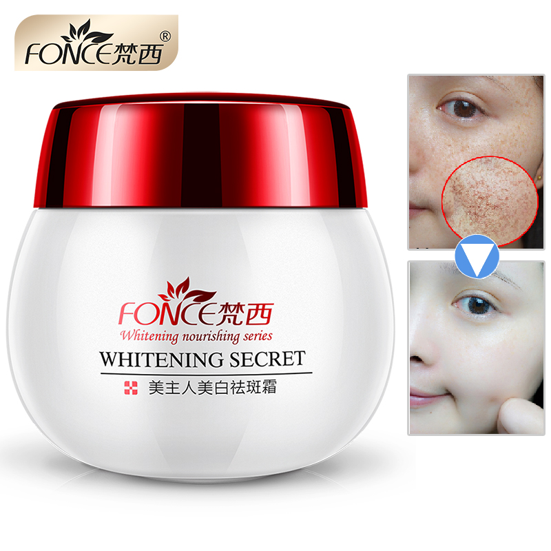Fonce Remove Freckles Cream 30g Skin Whitening Strong Effect Spot Remover Reduces Age Spots Fade Dark Spot Treatment Stain