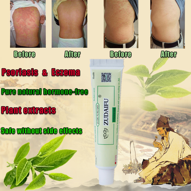 1pc zudaifu krem do ciała bez opakowanie detaliczne mężczyźni kobiety produkt do pielęgnacji twarzy łagodzi łuszczycowe zapalenie skóry egzema świąd efekt