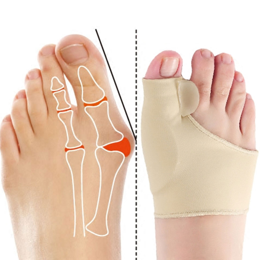 2 шт. = 1 пара корректор ортопедический Уход за ногами коррекция большого пальца кости мягкие носки для педикюра Выпрямитель для ног
