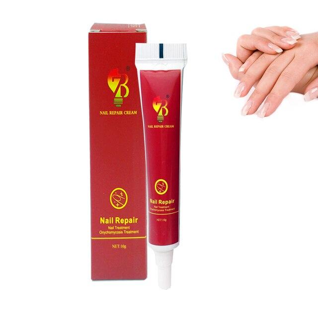 最高の中国医学のハーブネイルトリートメントクリーム爪周囲炎抗爪感染細菌戦うと自然