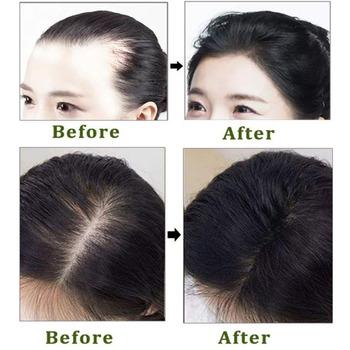 Ginger Hair Serum wzrostu + Spray 7 dni kiełkowanie włosów esencja na długie rzęsy olej utrata włosów leczenie mężczyźni kobiety Anti utrata włosów pielęgnacja tanie i dobre opinie LAIKOU 565446546498498 CN (pochodzenie) Produkt wypadanie włosów Ginger extract Polygonum multiflorum extract Ginseng extract