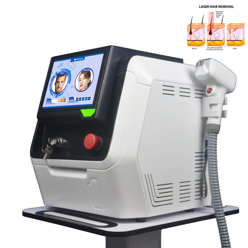 onda do laser 3 da remoção do cabelo 808