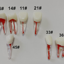 1Pis Teeth Model Dental Endo Files Practise Molar Upper Lower Tooth Premolar Root 2/3-Rooted Canal Red Pulp 7Types