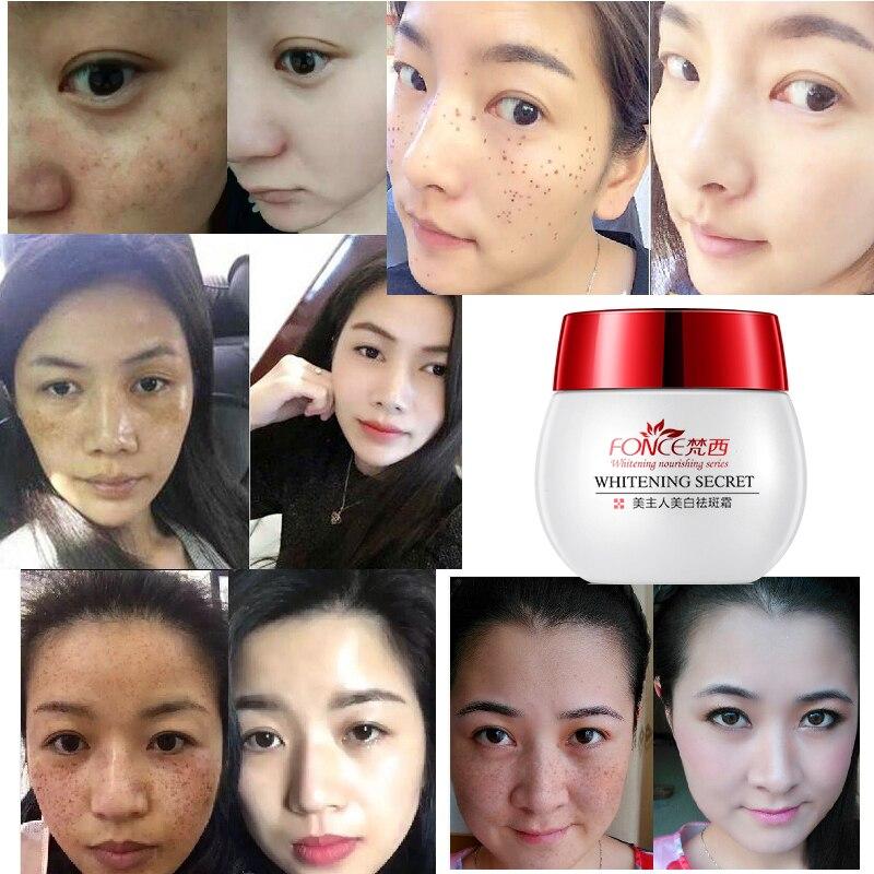 de manchas escuras anti envelhecimento desvanece se beleza creme facial 05