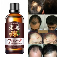 Get more info on the 30ml Hair Growth Serum Ginger Essence Regrowth Essential Oil Liquid Treatment Care Hair Product Men Preventing Hair Loss Oil