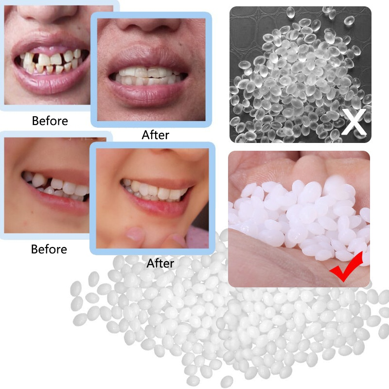 Resin False Teeth Solid Glue Temporary Tooth Repair Denture Adhesive Teeth Dentist Teeth Gap Falseteeth Solid Glue 10/50/100g