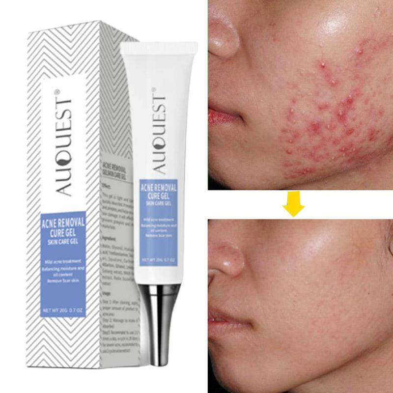 20g Scar Marks Acne Treatment Gentle Acne Removal Cure Gel Comedone Button Repair Cleaning Cream Beauty Skin Care