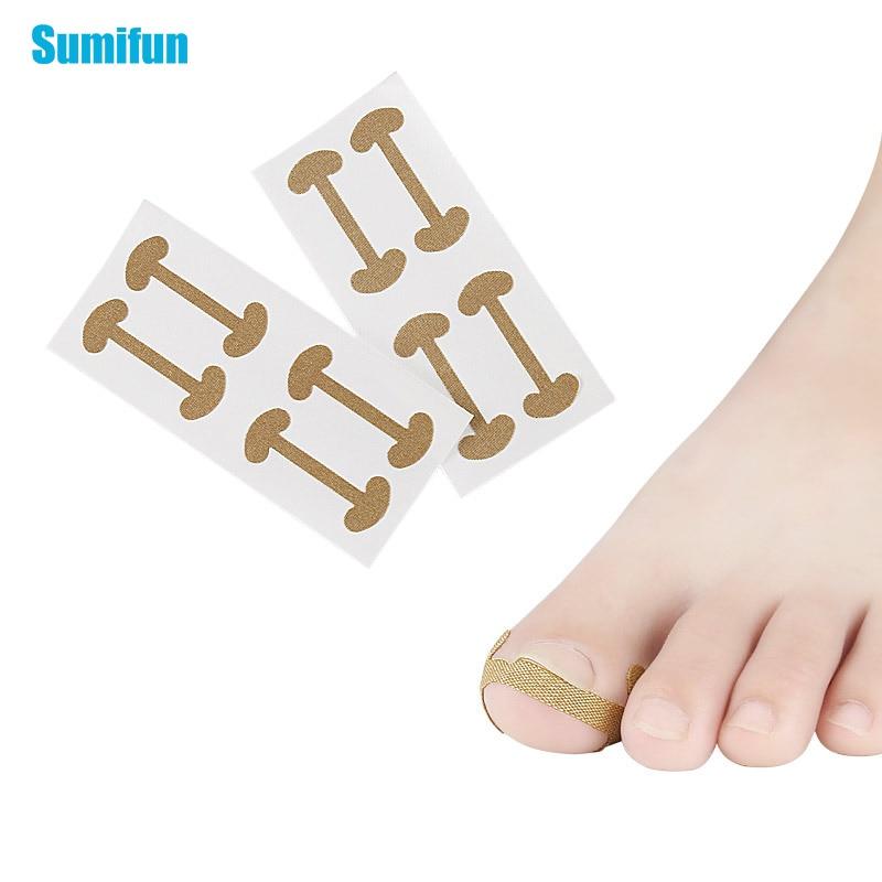 4pcs Ingrown Toenail Correction Tool Straightening Clipper Sticker Toe Nail Pedicure Tool Paronychia Treatment Patch C1701