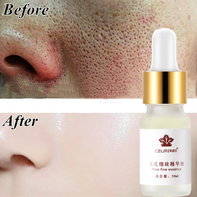 Hyaluronic Acid Pore Treatment Serum Essence Shrink Pores Relieve Dryness Oil Control Firming Moisturizing Repairing Skin Care