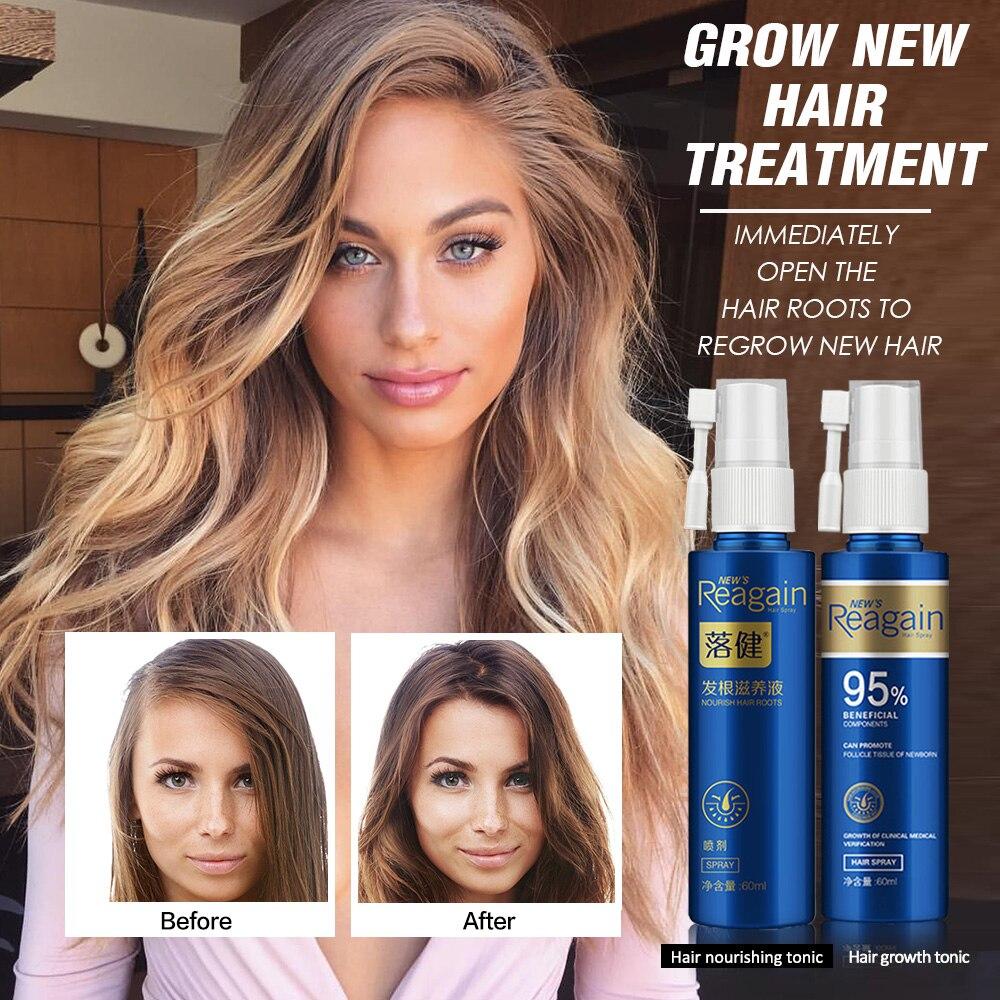 Hair Growth Essence Oil Spray For Hair Regrowth Oil Anti Hair Loss Hair Growth Serum Liquid Hair Loss Treatment Hair Tonic