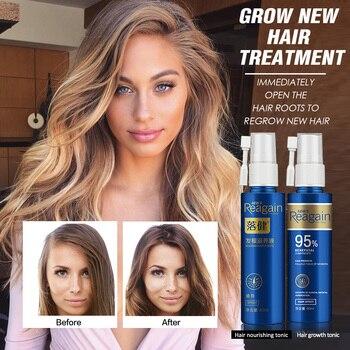 Hair Growth Essence Oil Spray for Hair Regrowth Oil Anti Hair Loss Hair Growth Serum liquid Hair Loss Treatment Hair Tonic tonic body treatment oil
