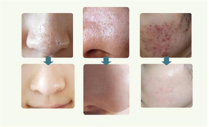 Image 3 - 6 טיפים טיפול פנים יופי מכשיר עור יהלומי Dermabrasion להסיר נקודות שחורות עור קילוף מכונה טיפול עיסוי Microdermabrasion