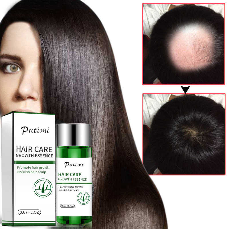 Natural Hair Growth Serumป้องกันFast Growth Essence Thicken Magical Keratin Hair Treatment Maskได้อย่างมีประสิทธิภาพTSLM1