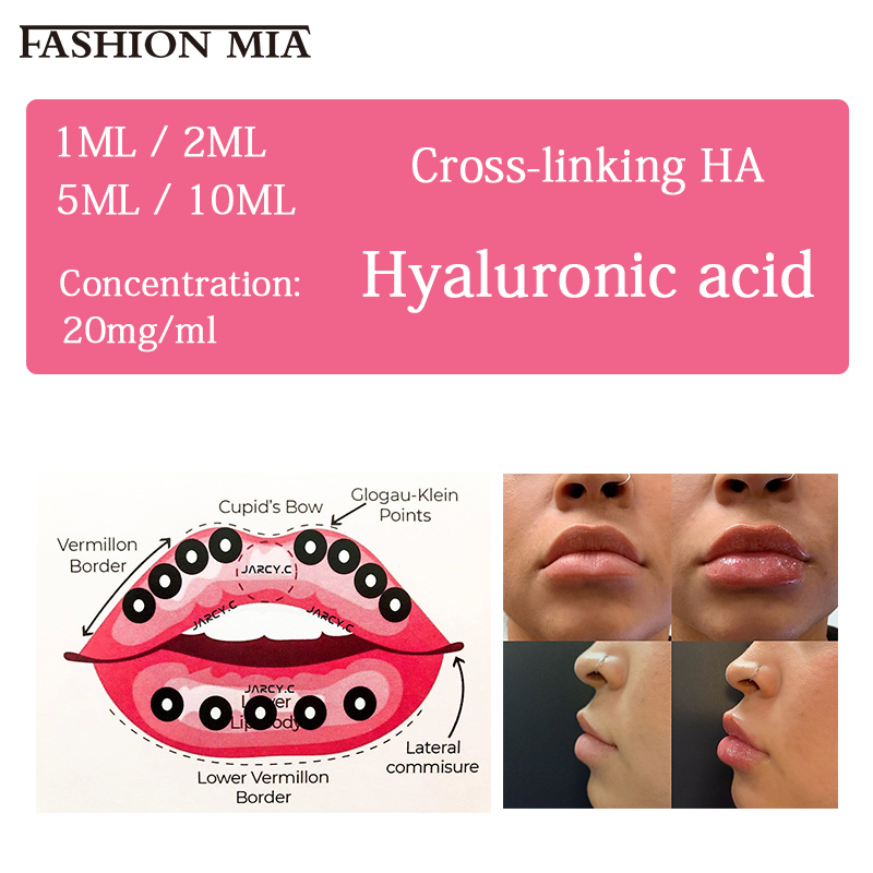 2ml/5ml/10ml Lips Hyaluronic Acid With Box Hot