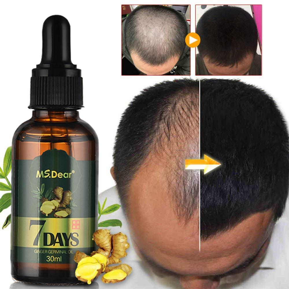 30ml Crescita Dei Capelli Siero Zenzero Crescita Dei Capelli Olio Essenziale di Anti Prevenire Perdita di Capelli Alopecia Trattamento Denso Crescita Dei Capelli Siero
