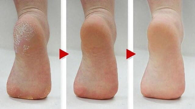 Электрический пилочка для ног, средство для удаления мозолей, педикюр, набор инструментов, 5 роликов для сухих ног, твердых, мертвых мозолей кожи, треснутых пяток, инструмент для ухода