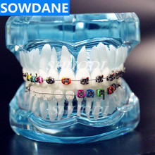 Transparent Dental Orthodontic Mallocclusion Model with Brackets Archwire buccal tube Tooth Extraction for Patient Communication dental oral care tooth teeth model dental orthodontic model for patient communication dentist study model