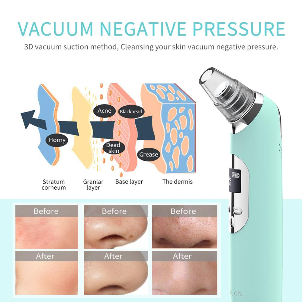 Clearance SaleBeauty-Tool Pimple-Removal Skin-Care Cold-Facial-Cleaner Vacuum-Suction Acne Face Spa