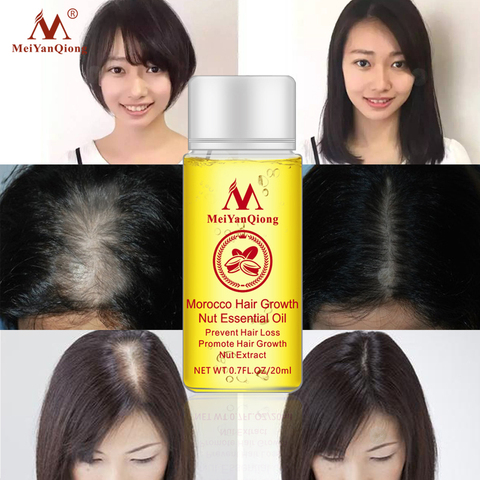 Fast Powerful Hair Growth Essence Hair Loss Products Essential Oil Liquid Treatment Preventing Hair Loss Hair Care Products 20ml Multan