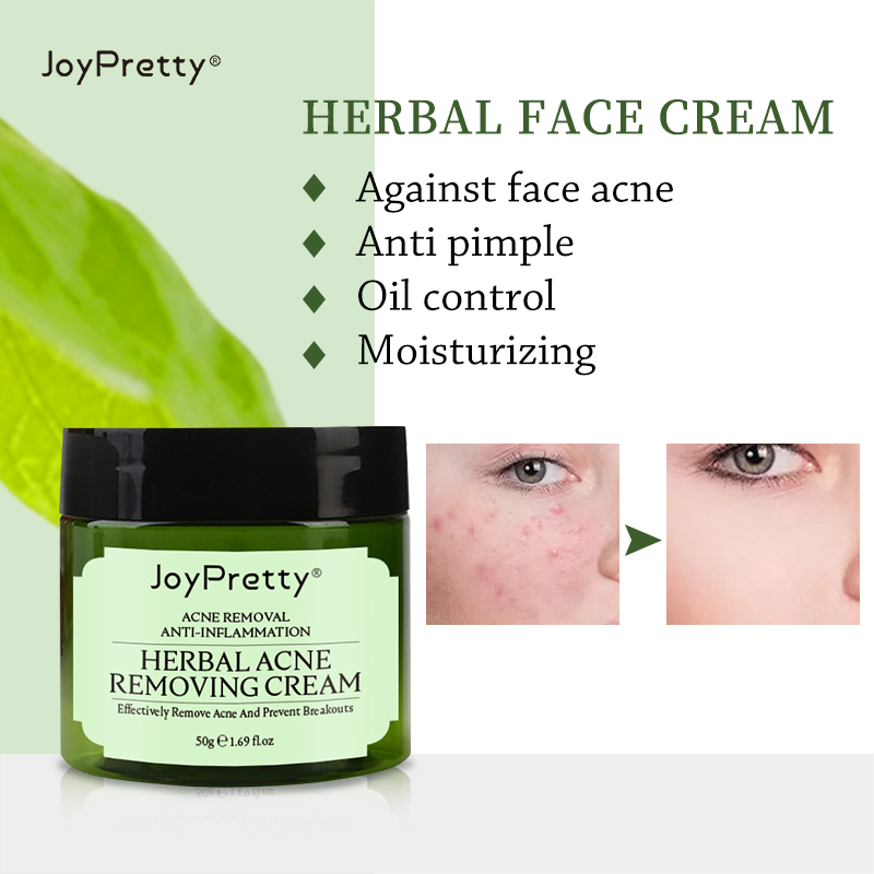 JoyPretty Herbal Day Cream For Acne Skin Care Face Moisturizer Oil Control Pimple Acne Scar Removal Cream Treatment For Women