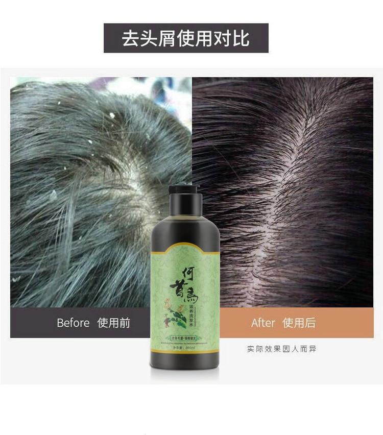 Grey Hair Removal Anti White Hair Shampoo Treatment Of Black Brunette Moisturizing nourishing hair blacken shampoo 300 ml