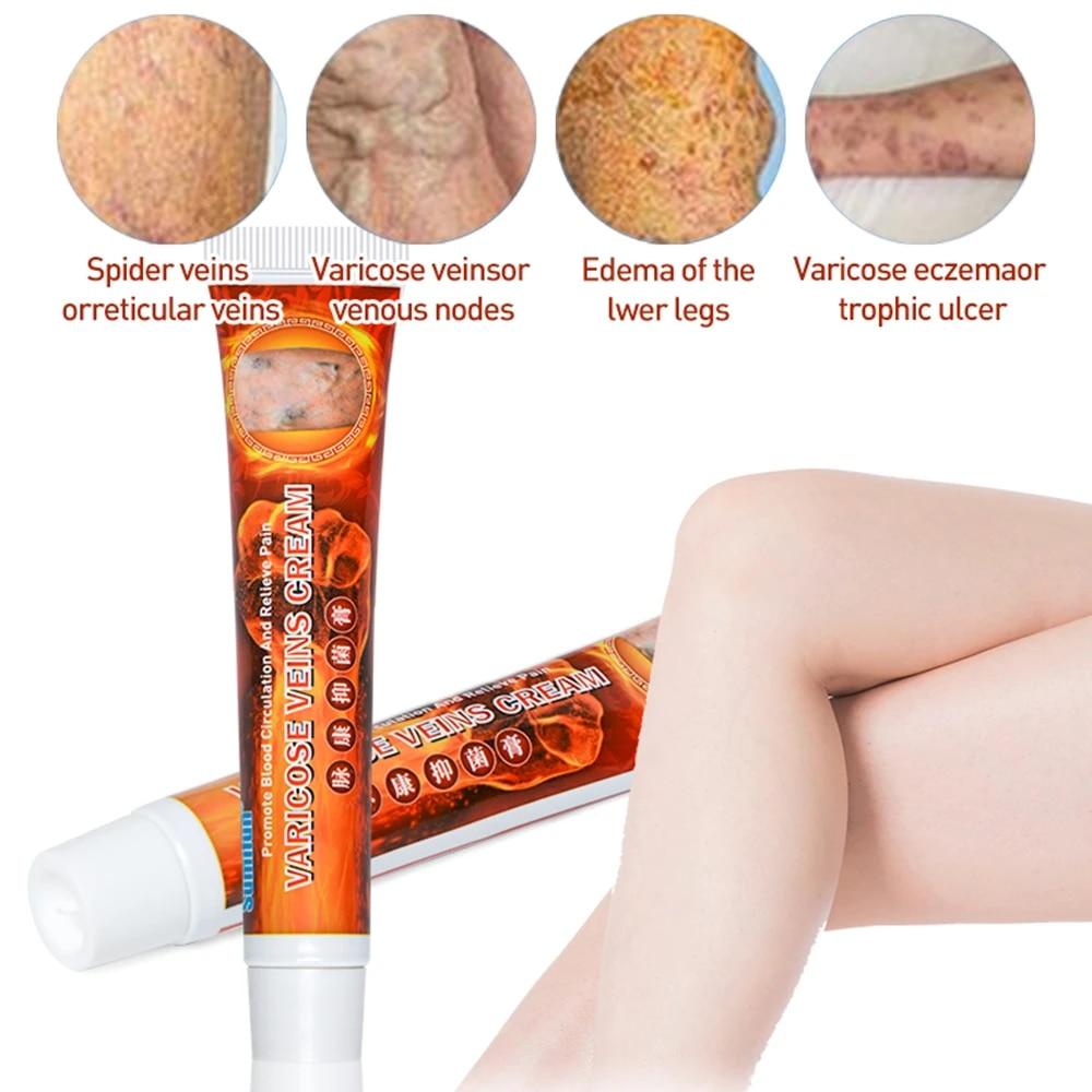 Crema de îngrijire a corpului Varicose Vein Cream Body Hidratant Care Cream