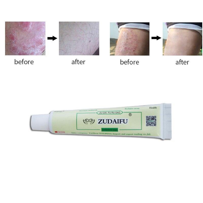 zudaifu Skin Psoriasis Cream Dermatitis Eczematoid Eczema
