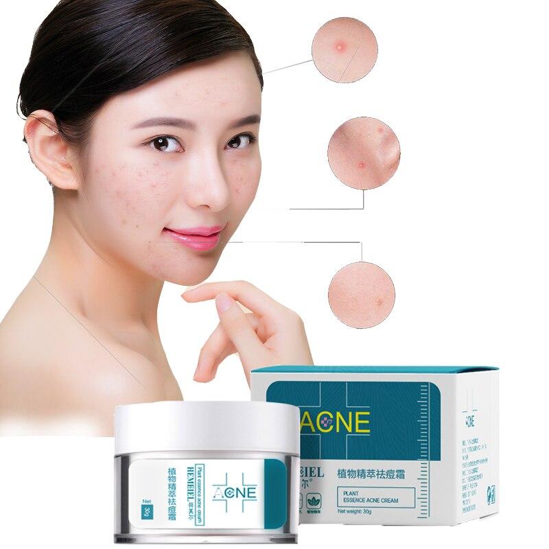 HEMEIEL Herbal Creme Anti-Acne Tratamento Da Acne Creme Para o Rosto Cuidados Com a Pele Oleosa Acne Manchas Hidratante Da Cicatriz Da Acne Remover Cravo