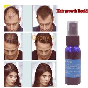 Image 2 - 4 шт., продукты для быстрого роста волос для мужчин и женщин