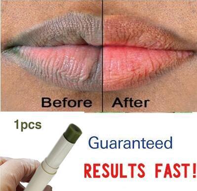 О средства ухода за губами розовый свежий Осветляющий отбеливающий крем для удаления темный дым губ масло 1 шт.